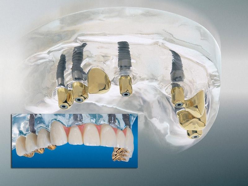 Festsitzende Implantatlösung