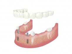 Wenige Einzelzähne stehen noch