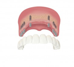 Zahnimplantate im zahnlosen Oberkiefer