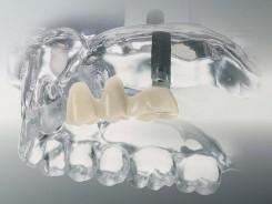 Brücke auf Zahnimplantaten