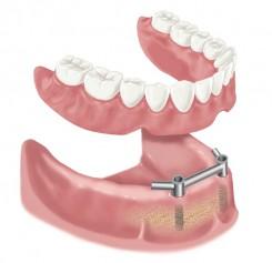 Zahnimplantate im zahnlosen Unterkiefer